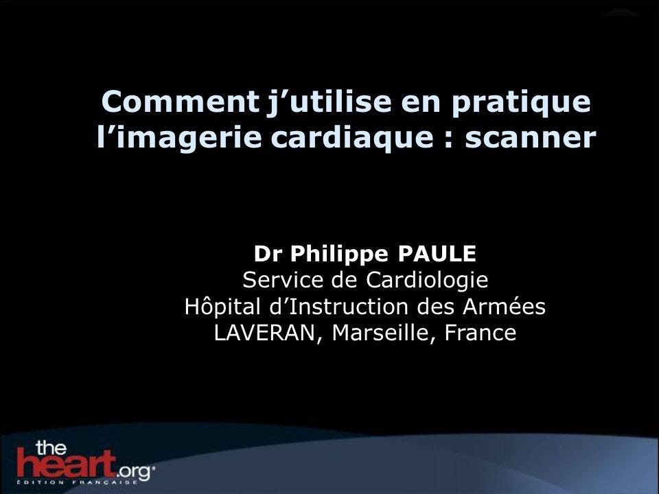 Comment j'utilise en pratique l'imagerie cardiaque : scanner