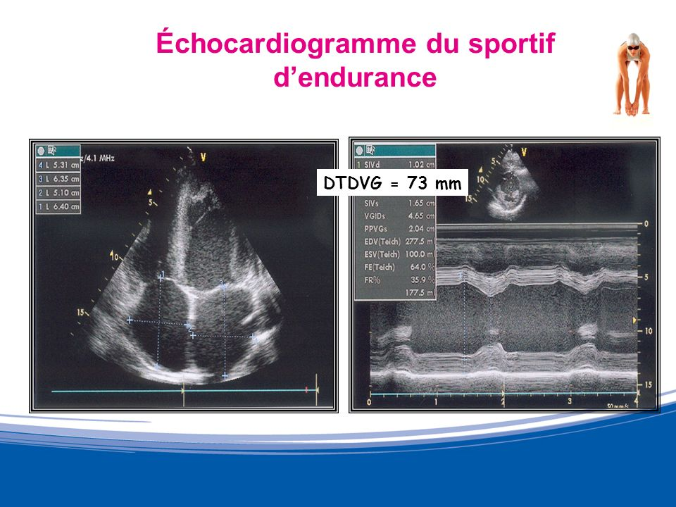 Échocardiogramme du sportif d'endurance