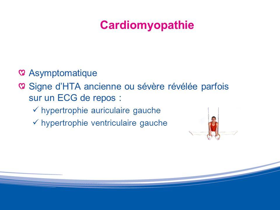 Cardiomyopathie Asymptomatique
