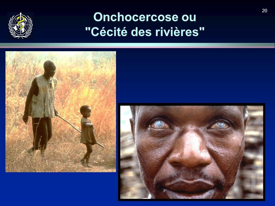 Onchocercose ou Cécité des rivières
