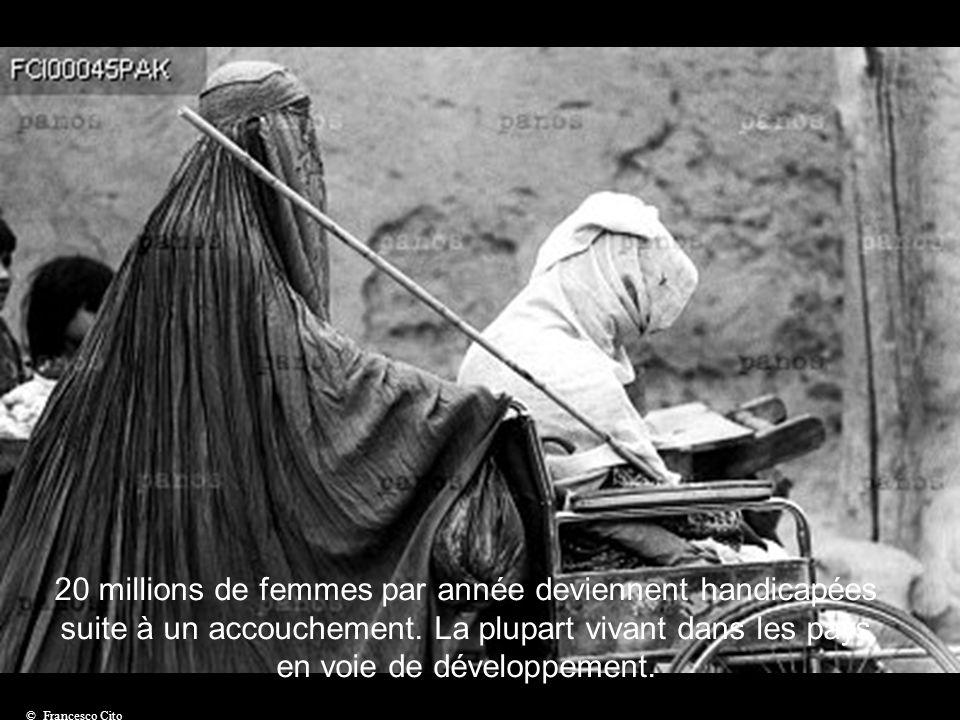 20 millions de femmes par année deviennent handicapées suite à un accouchement. La plupart vivant dans les pays en voie de développement.