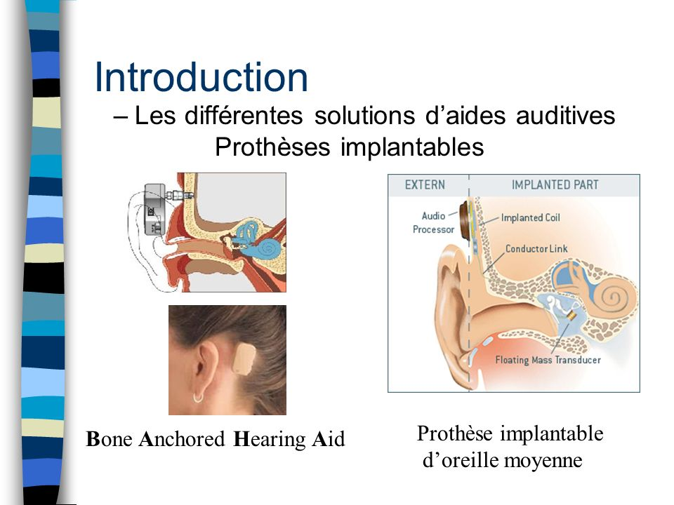 Introduction Les différentes solutions d'aides auditives Prothèses implantables. Prothèse implantable.