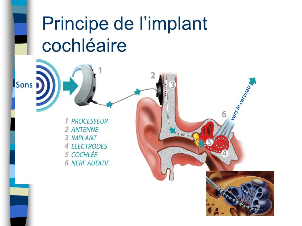 Principe de l'implant cochléaire