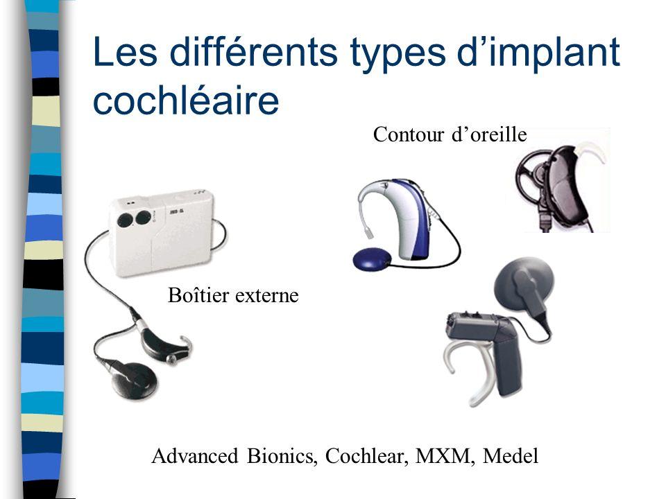 Les différents types d'implant cochléaire