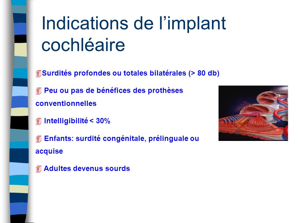 Indications de l'implant cochléaire