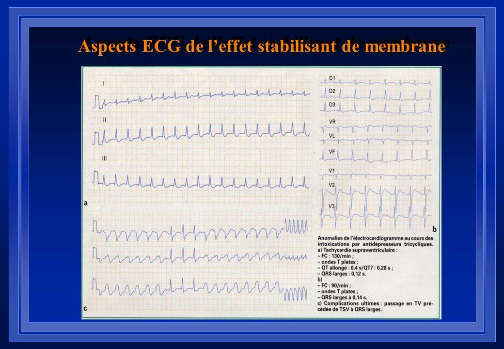 Aspects ECG de l'effet stabilisant de membrane