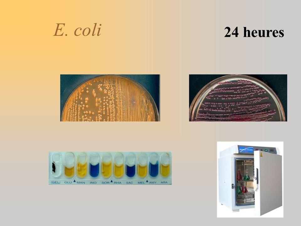 E. coli 24 heures