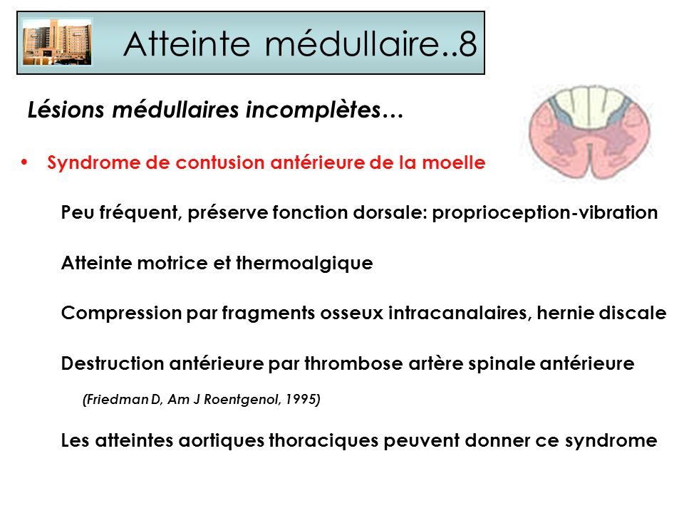 Atteinte médullaire..8 Lésions médullaires incomplètes…