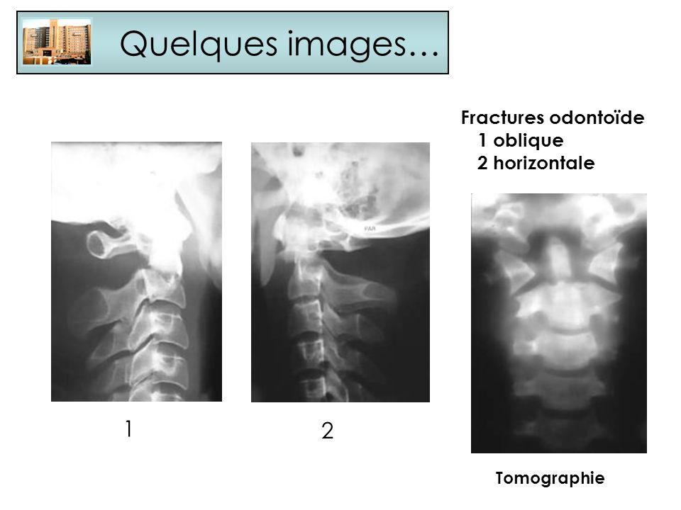 Quelques images… 1 2 Fractures odontoïde 1 oblique 2 horizontale