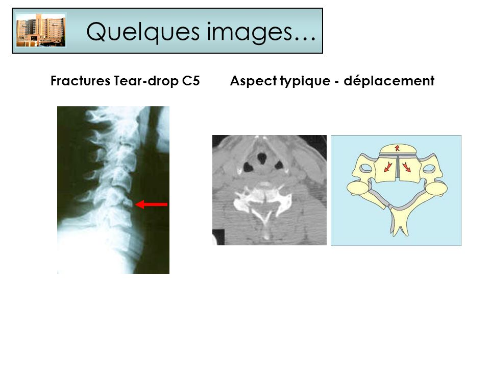 Quelques images… Fractures Tear-drop C5 Aspect typique - déplacement