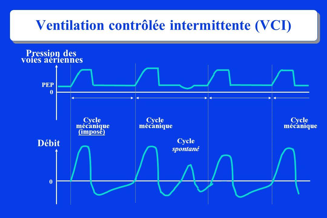 Ventilation contrôlée intermittente (VCI)