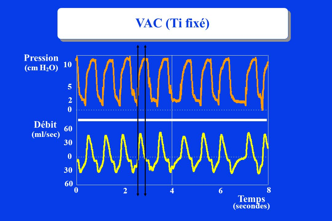 VAC (Ti fixé) Pression Débit Temps (cm H2O) 10 5 2 (ml/sec) 60 30 30