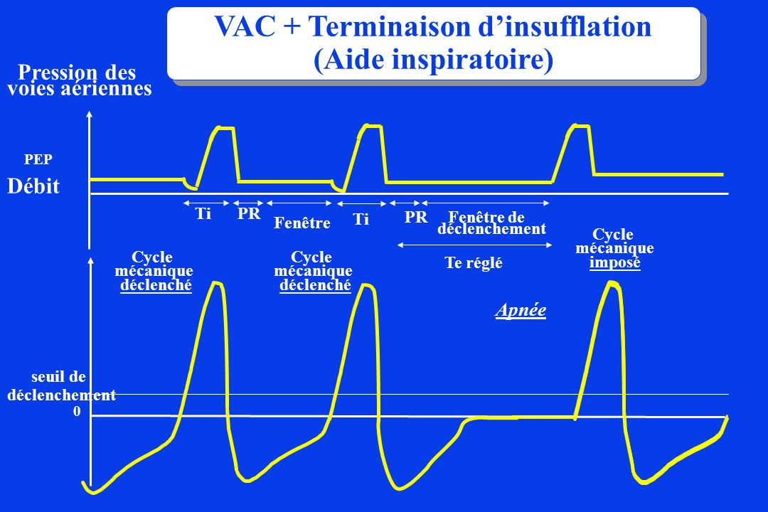 VAC + Terminaison d'insufflation (Aide inspiratoire)