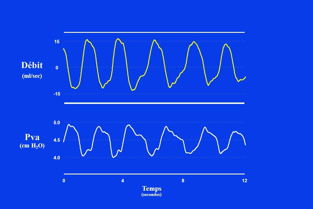 4 8 -15 15 4.0 4.5 5.0 12 (ml/sec) Débit Pva (cm H2O) (secondes) Temps