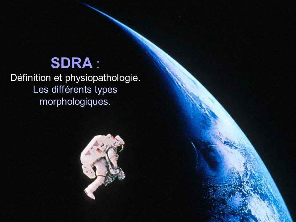 SDRA : Définition et physiopathologie