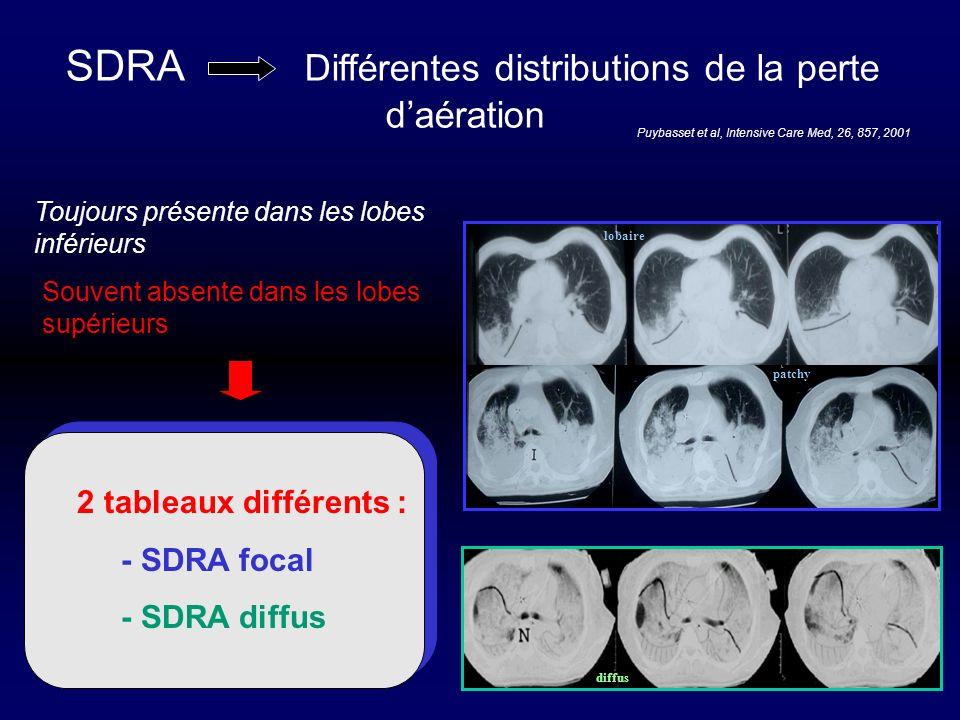 SDRA Différentes distributions de la perte d'aération