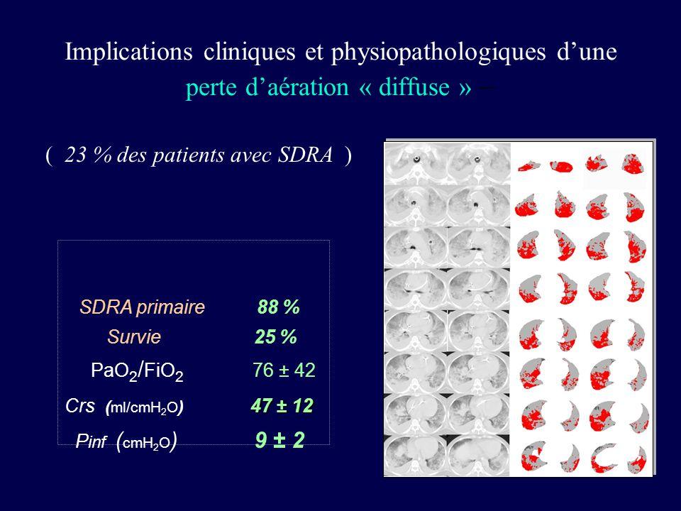 ( 23 % des patients avec SDRA )