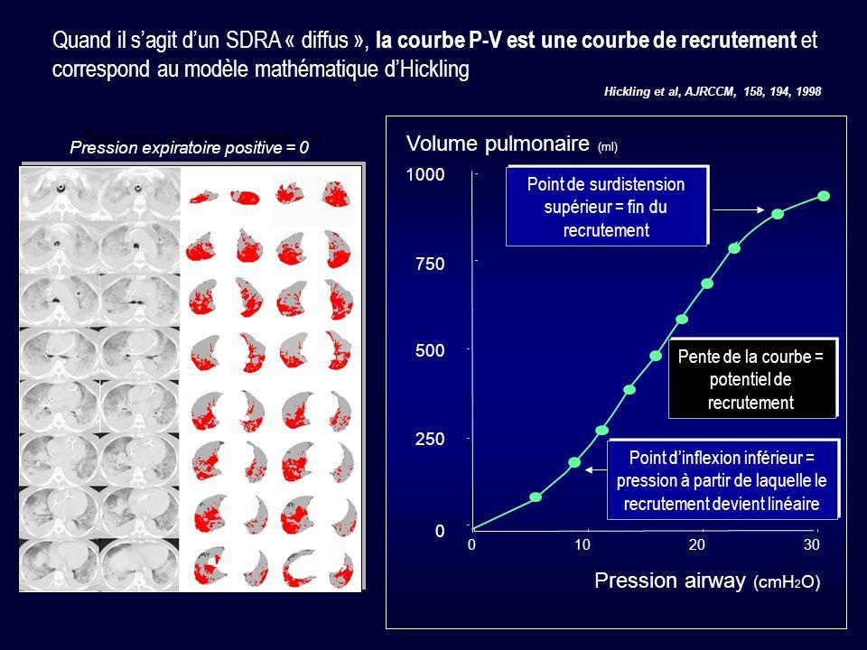 Quand il s'agit d'un SDRA « diffus », la courbe P-V est une courbe de recrutement et correspond au modèle mathématique d'Hickling