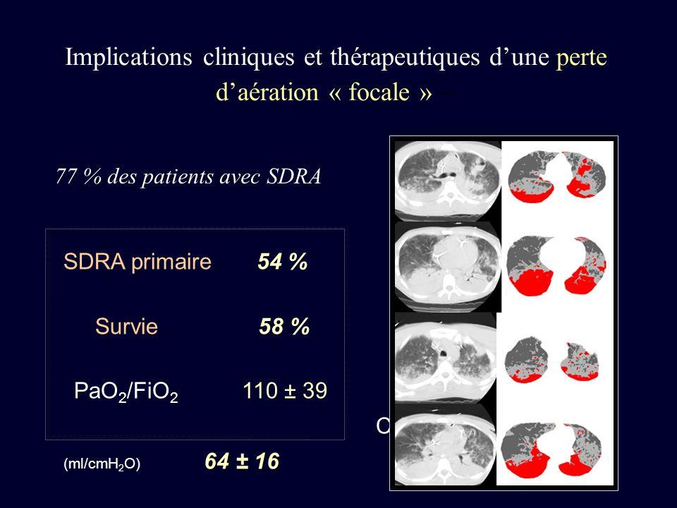 77 % des patients avec SDRA
