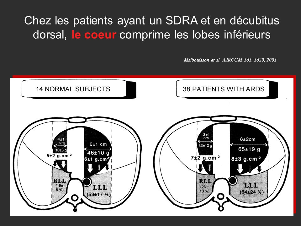 Chez les patients ayant un SDRA et en décubitus dorsal, le coeur comprime les lobes inférieurs