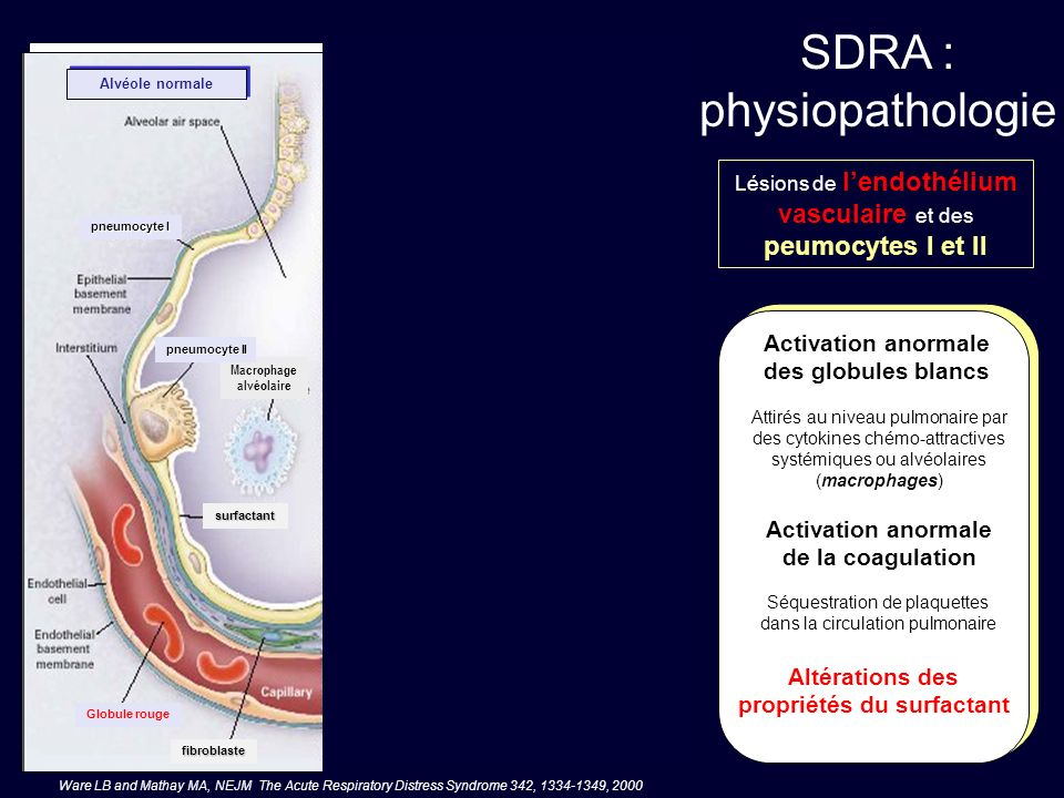 SDRA : physiopathologie