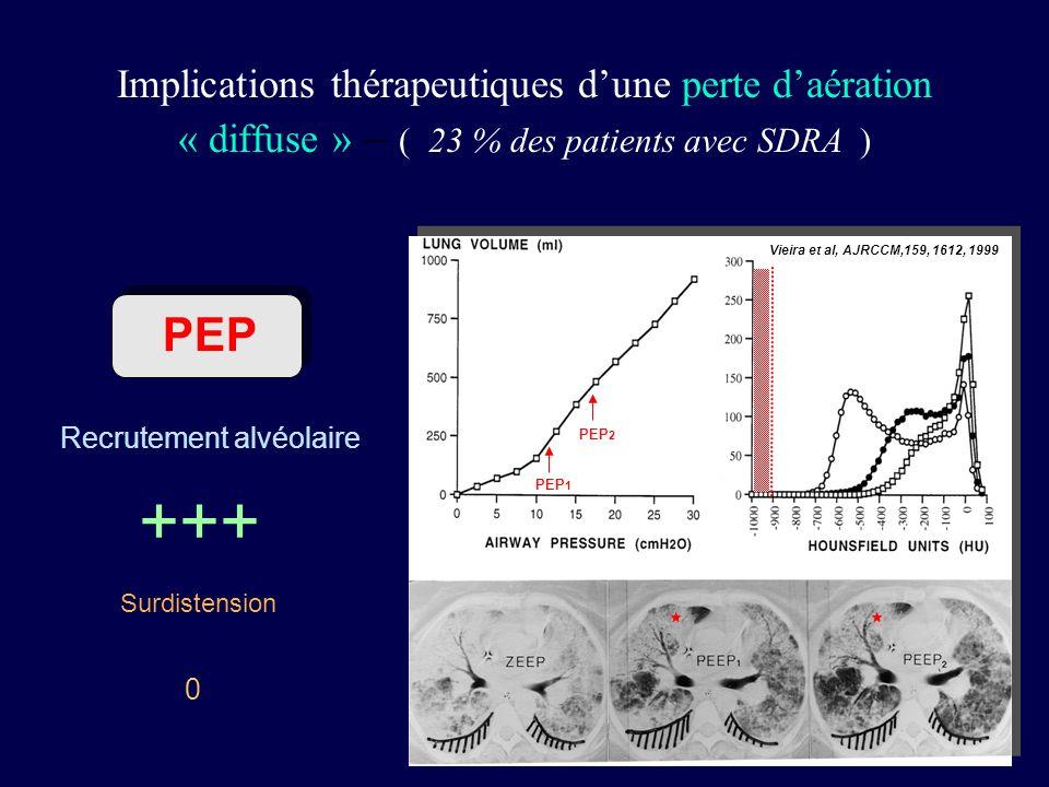 Implications thérapeutiques d'une perte d'aération « diffuse » – ( 23 % des patients avec SDRA )