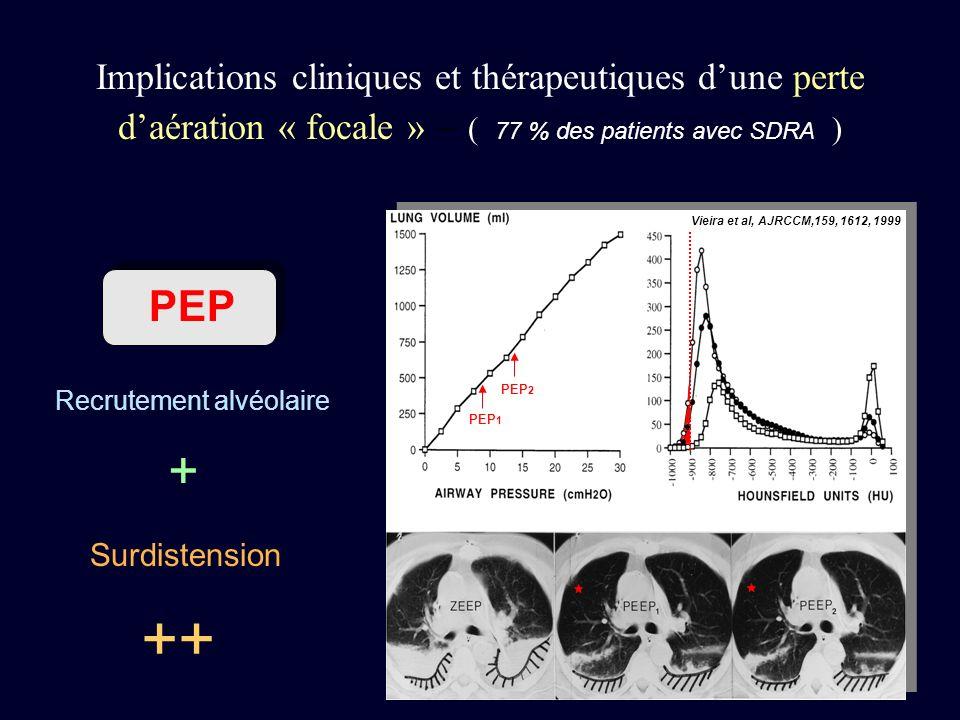 Implications cliniques et thérapeutiques d'une perte d'aération « focale » – ( 77 % des patients avec SDRA )