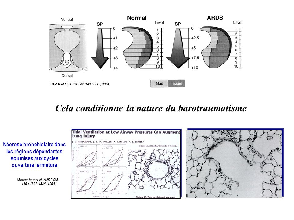 Cela conditionne la nature du barotraumatisme