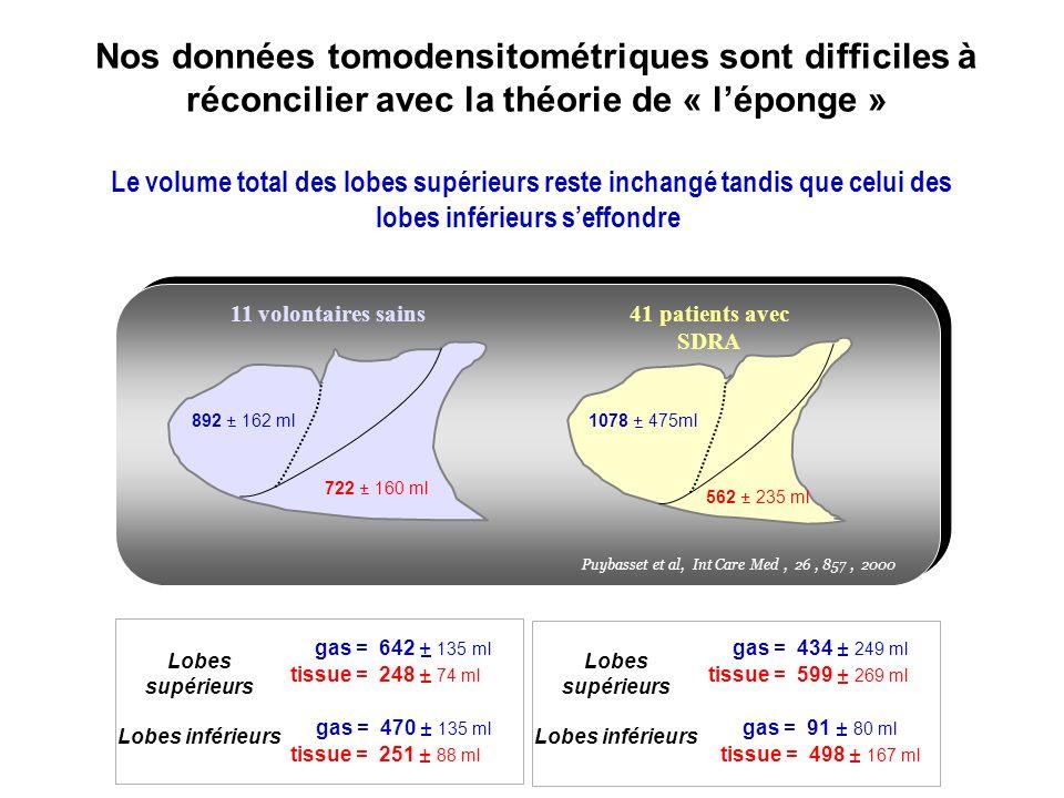 Nos données tomodensitométriques sont difficiles à réconcilier avec la théorie de « l'éponge »