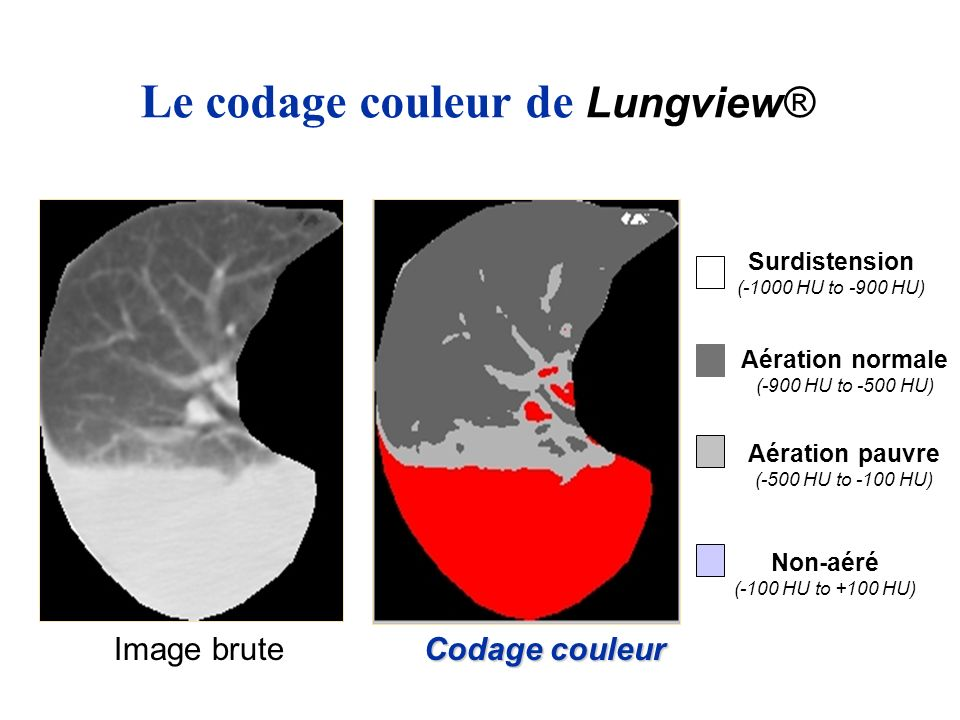 Le codage couleur de Lungview®