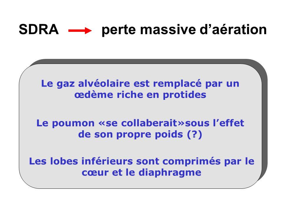 SDRA perte massive d'aération