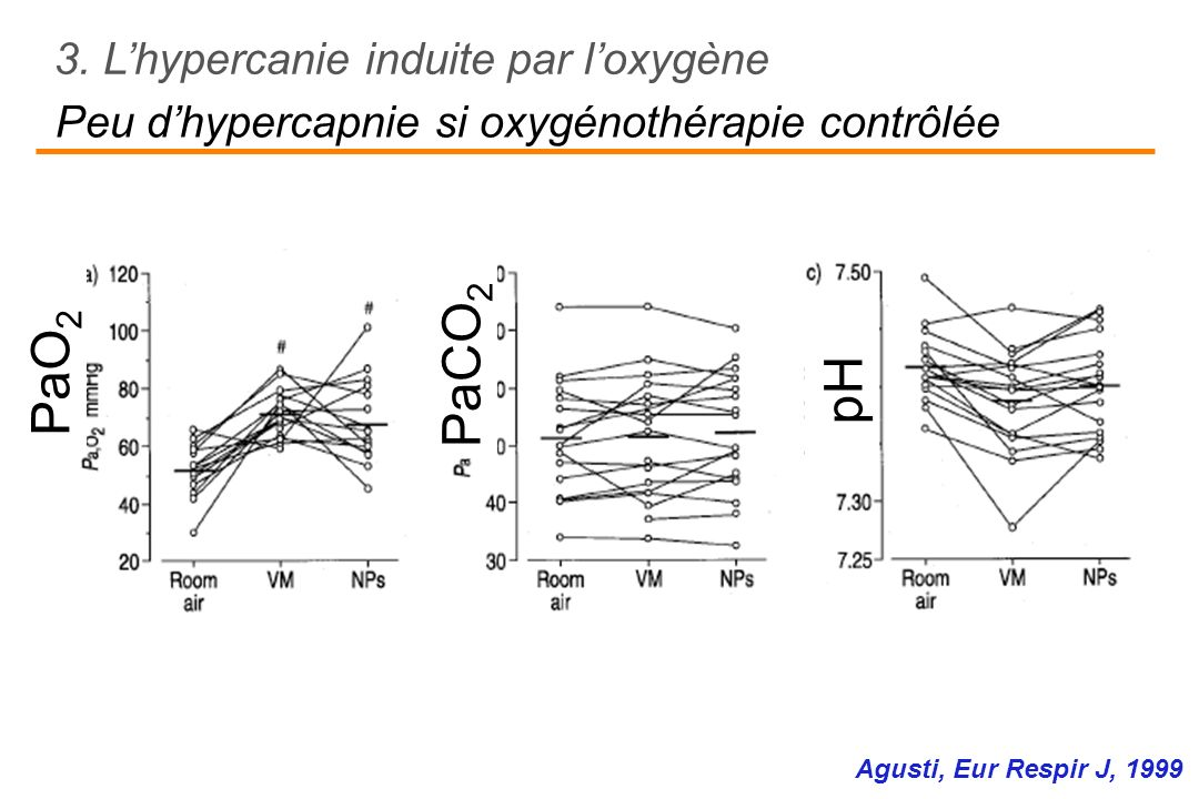 Peu d'hypercapnie si oxygénothérapie contrôlée
