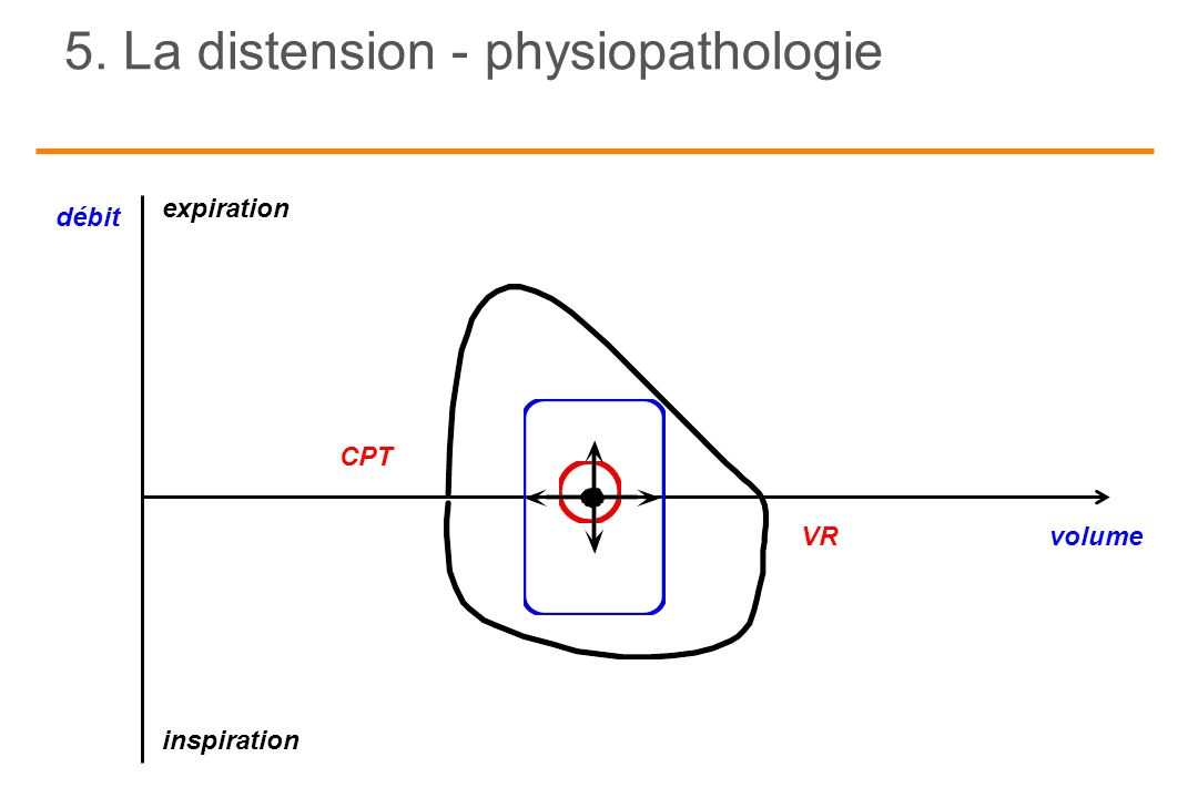 5. La distension - physiopathologie