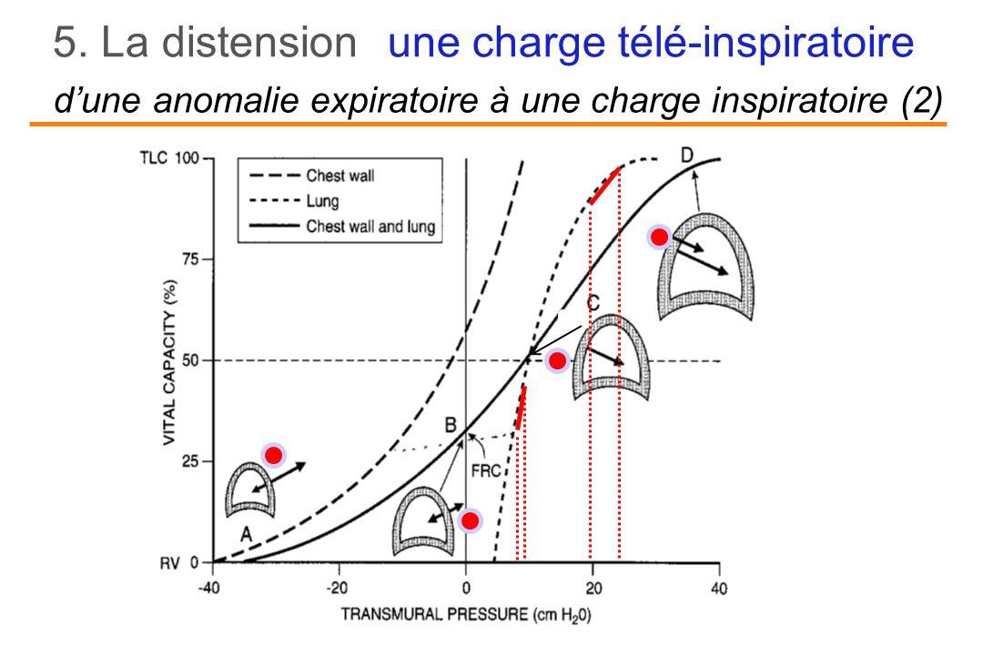 d'une anomalie expiratoire à une charge inspiratoire (2)