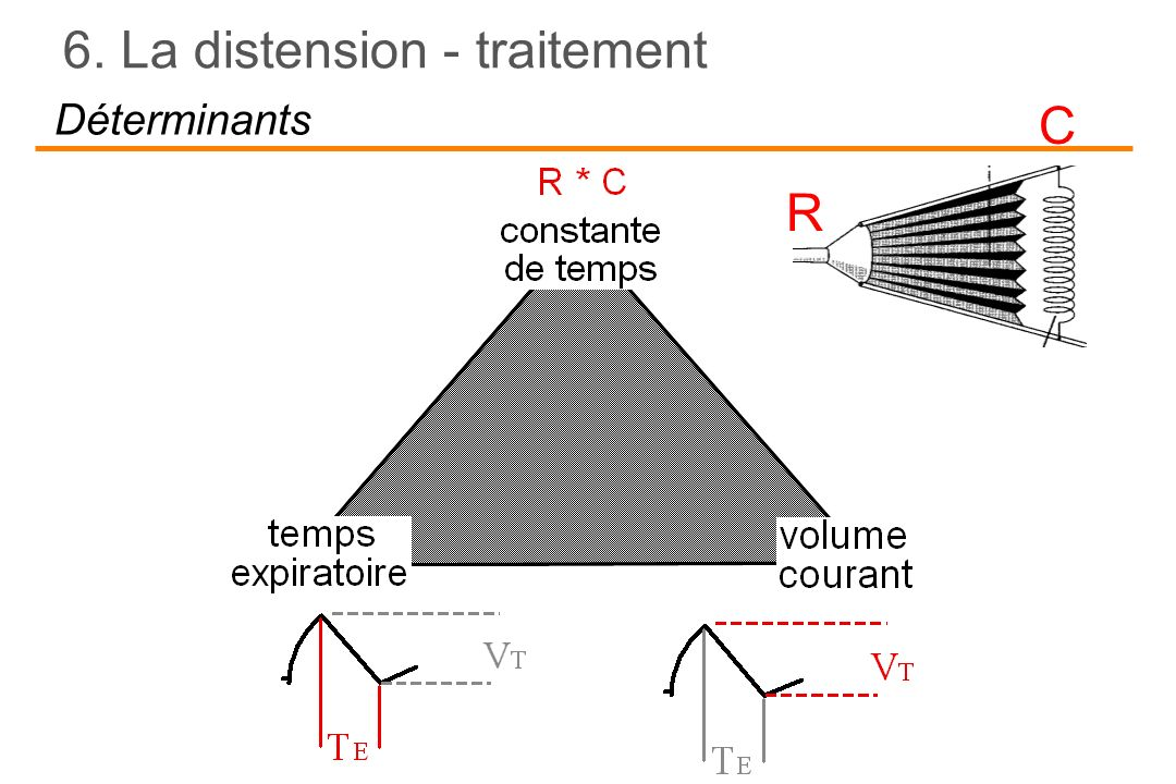 6. La distension - traitement