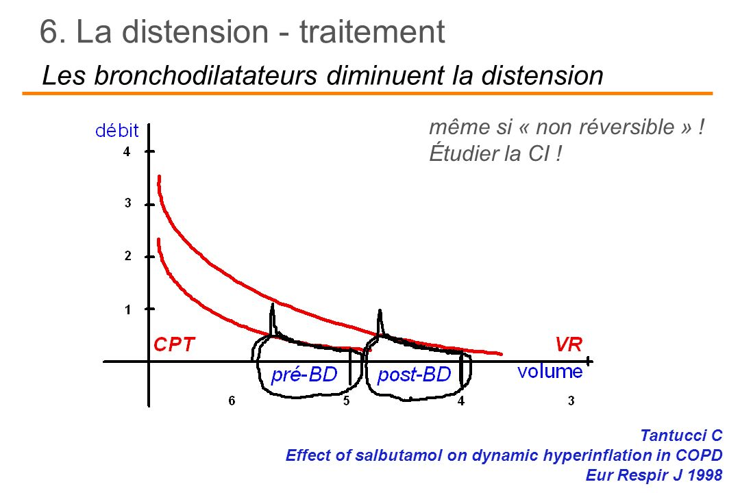 Les bronchodilatateurs diminuent la distension