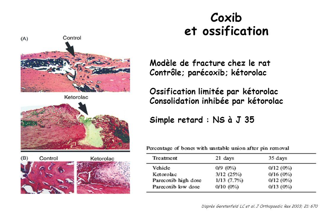 Coxib et ossification Modèle de fracture chez le rat