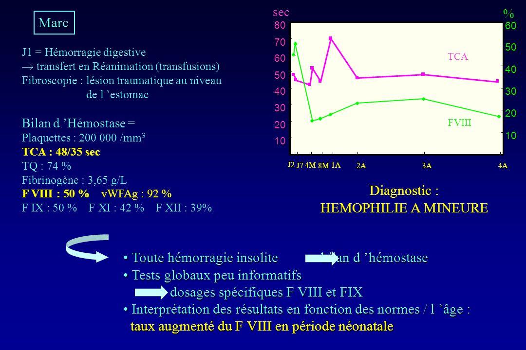 Toute hémorragie insolite bilan d 'hémostase