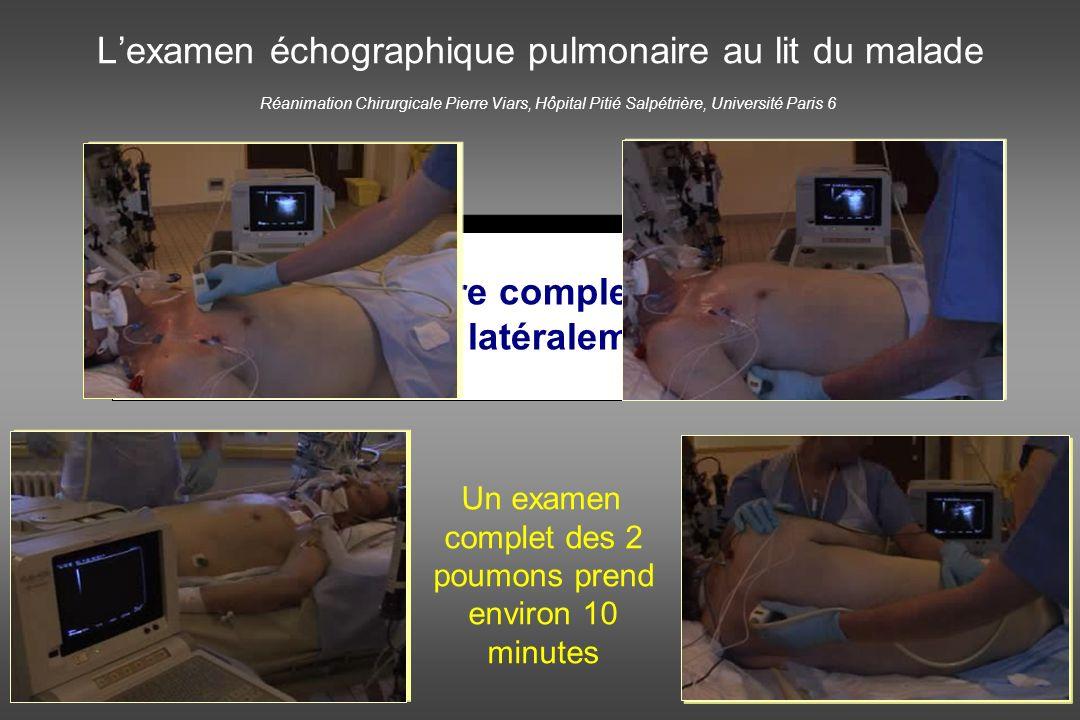 L'examen échographique pulmonaire au lit du malade