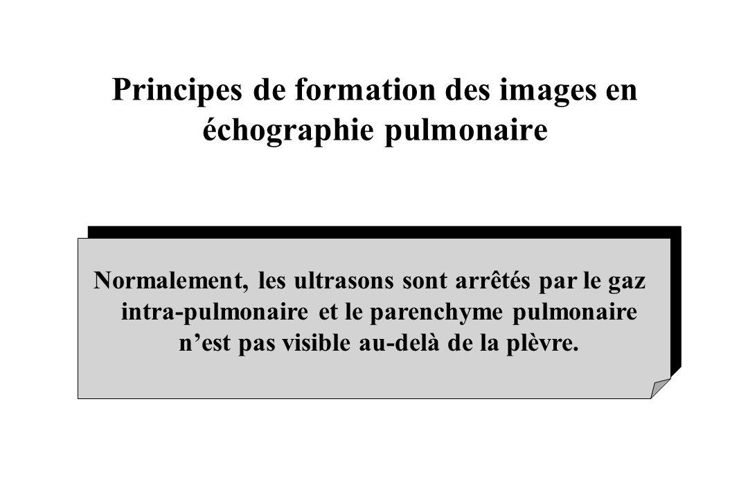 Principes de formation des images en échographie pulmonaire