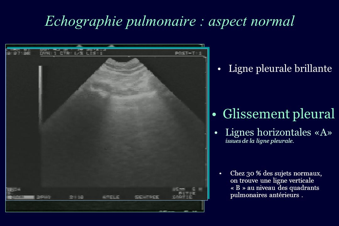 Echographie pulmonaire : aspect normal