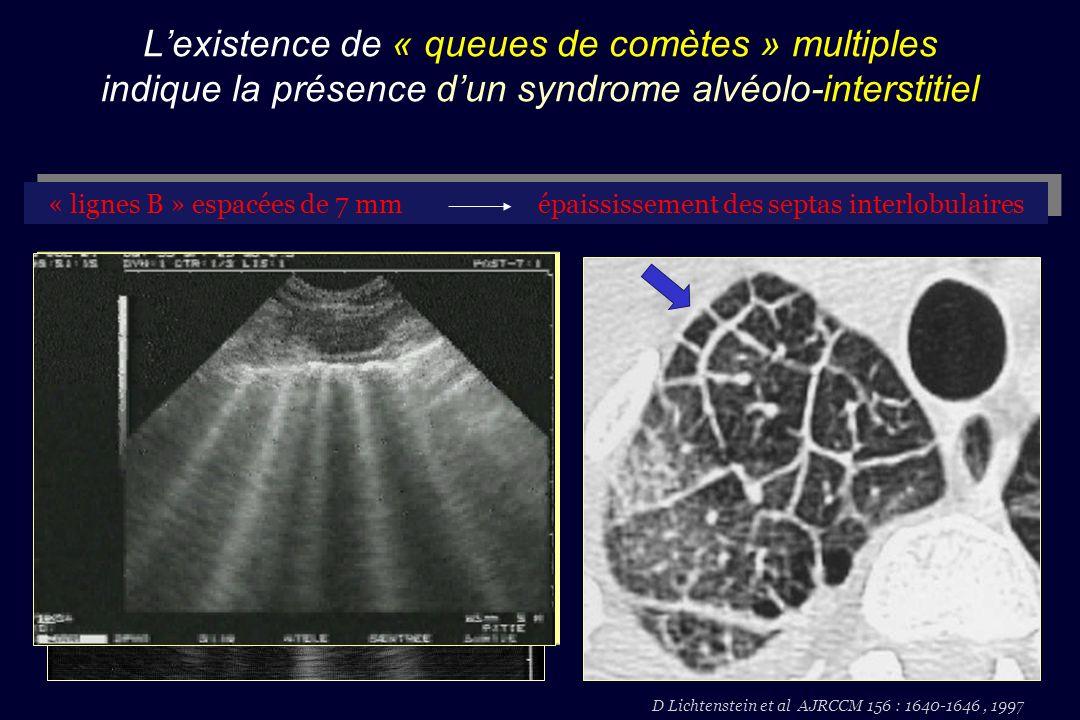 D Lichtenstein et al AJRCCM 156 : 1640-1646 , 1997