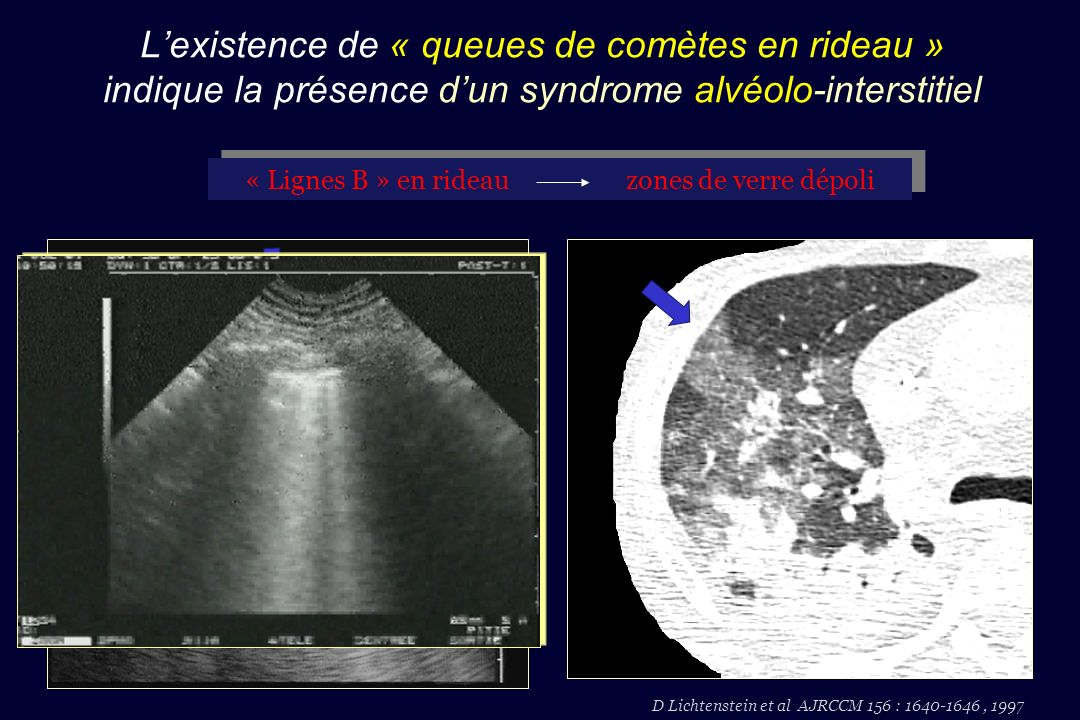 L'existence de « queues de comètes en rideau » indique la présence d'un syndrome alvéolo-interstitiel