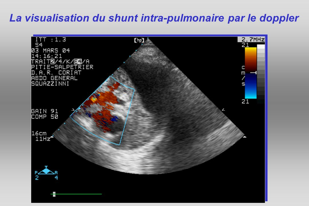 La visualisation du shunt intra-pulmonaire par le doppler