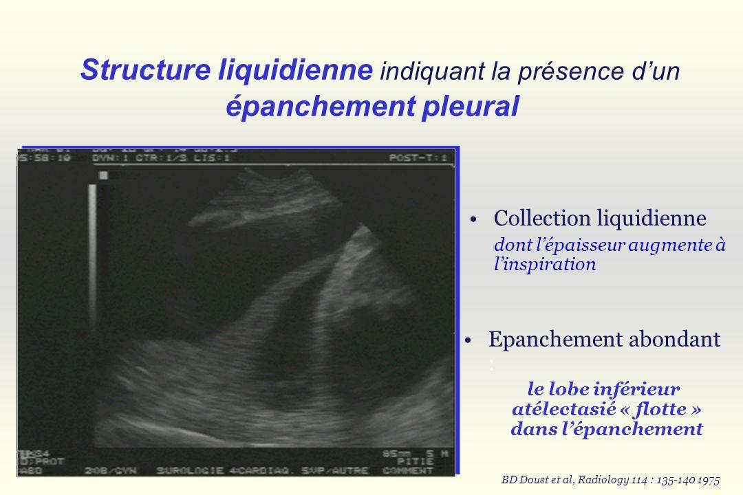 Structure liquidienne indiquant la présence d'un épanchement pleural