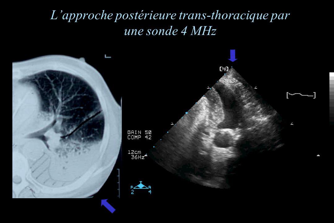 L'approche postérieure trans-thoracique par une sonde 4 MHz