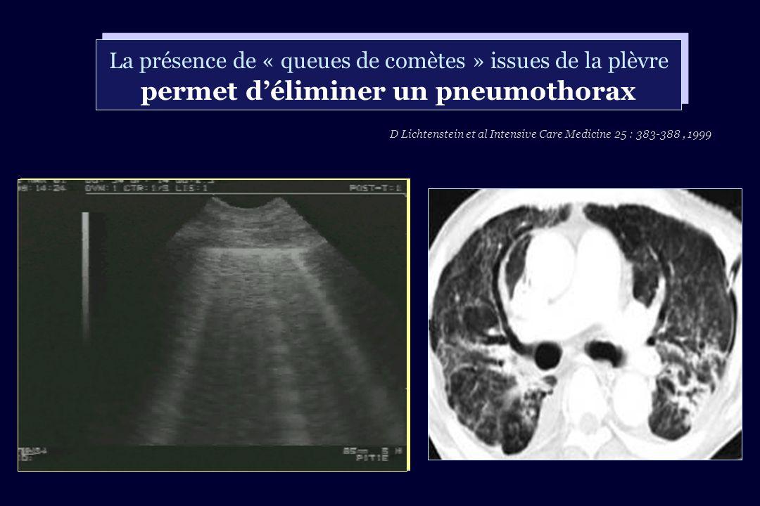 D Lichtenstein et al Intensive Care Medicine 25 : 383-388 , 1999