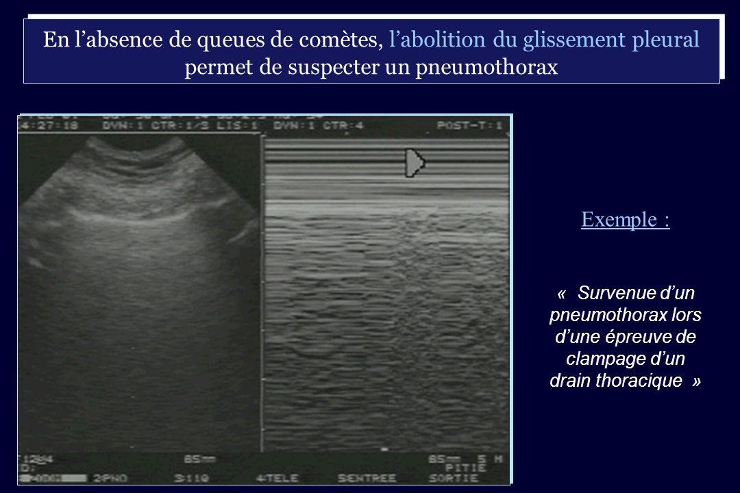 En l'absence de queues de comètes, l'abolition du glissement pleural permet de suspecter un pneumothorax