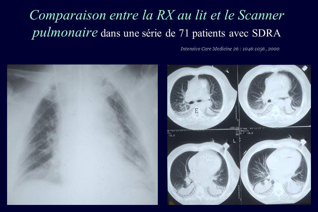Comparaison entre la RX au lit et le Scanner pulmonaire dans une série de 71 patients avec SDRA Intensive Care Medicine 26 : 1046-1056 , 2000