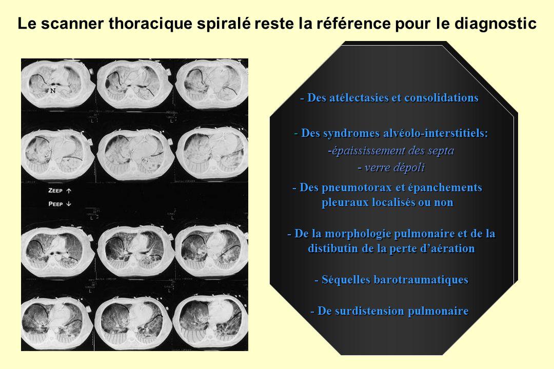 Le scanner thoracique spiralé reste la référence pour le diagnostic